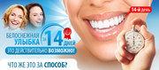 White light - система отбеливания зубов. В Днепропетровске
