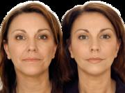 увеличение губ безинъекционным методом,  безинъекционная мезотерапия
